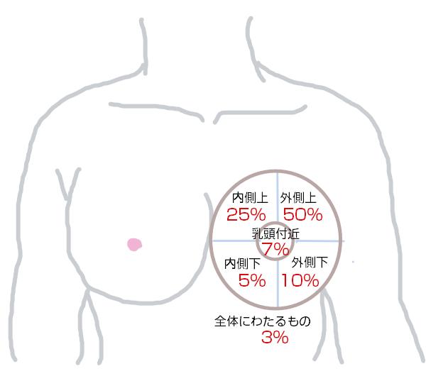 乳がん部位
